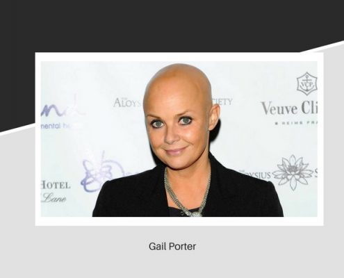 Gair Porter's hair loss
