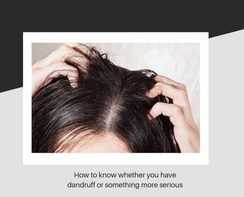 Dandruff symptoms